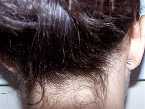 Nice What Do Lice Eggs Look Like On Hair? ....... The Full