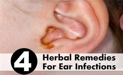 4 Must-try Herbal Remedies For Ear Infections Kitchen Table Corner Bench Glider White With Storage Street Benches Entryway Broyhill Teak Black Ottoman Mexican