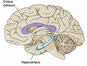 Brain Imaging Reveals Structural Defects  U2013 Understanding