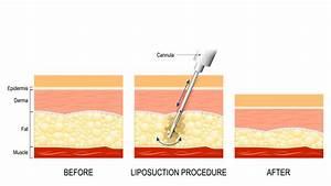 Liposuction Toronto