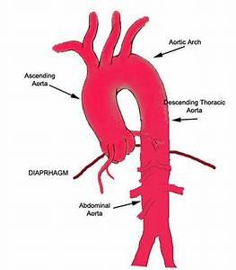 Diagram Of Ascending Aorta