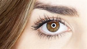 What Eye Freckles Can Tell You About Your Health