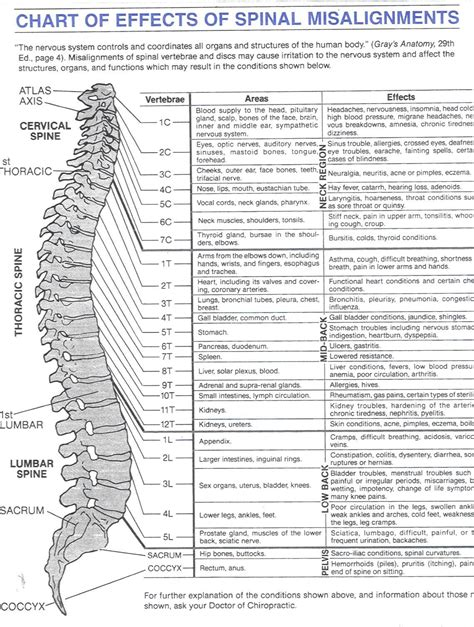 spinal misalignments chart