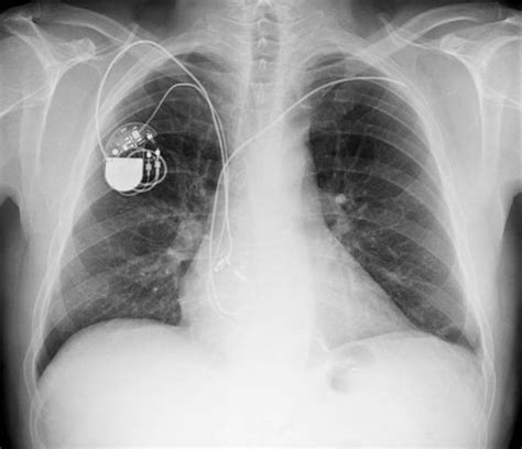 pacemaker warning  everyday appliances  disrupt