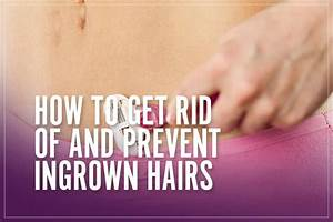 How To Get Rid Of  U0026 Prevent Ingrown Hairs  Treatment Guide