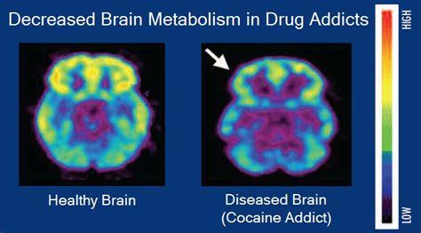 filebrain metabolism  drug addictionjpg wikimedia