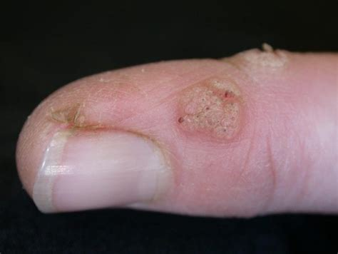 Treatment For Finger And Nail Warts