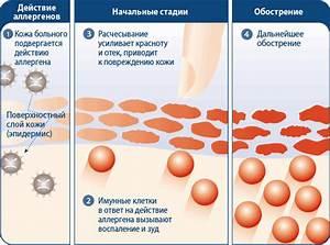 Препараты против аллергического дерматита