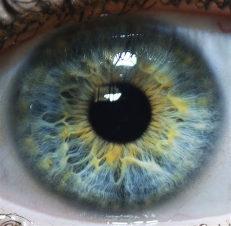 the rarest eye color real eye colors in humans search