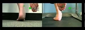 Positive Single Leg Heel Raise Test For PTTD - YouTube