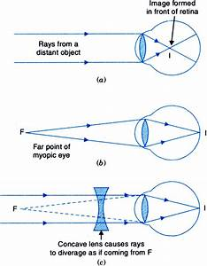 Make A Ray Diagram To Show How The Eye Defect Myopia Is