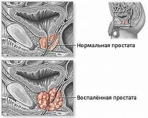 Аденома простата ее лечение