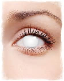 Shocking White Contact Lenses | White opaque Motif Lenses