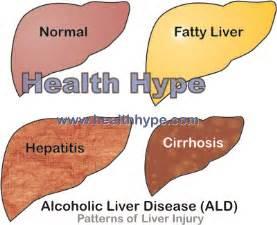 Alcoholic Fatty Liver Symptoms