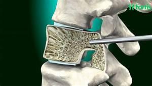 Vertebroplasty  U0026 Kyphoplasty   Spine Surgery  Neuro Surgery  Fortis Healthcare India
