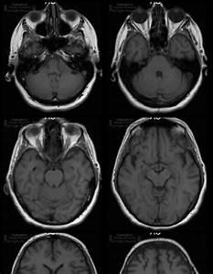 Neuroradiology On the Net: Cerebellar pontine angle meningioma