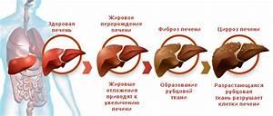 Заболевания печени симптомы и лечение препараты