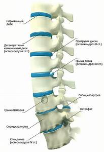 Пантогам от остеохондроза