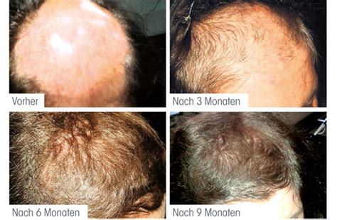 anti haarausfall therapie modefriseur pohl  muenchen