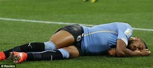 Medics want footballers who suffer concussion to be ...