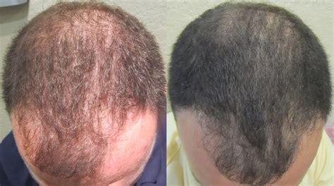 Hair Implants Plantsville Ct 06479 Prp For Hair Restoration Southington Ct