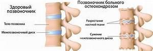 Остеохондроз позвоночника лечение народное