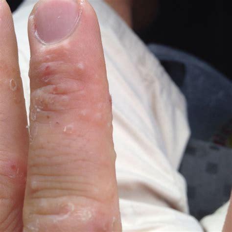 hautkrankheit hand krankheit haut