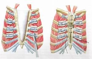 Артроз грудино-реберного сочленения лечение