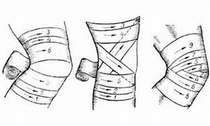 Elastic Bandage For Knee  How To Apply  Wind