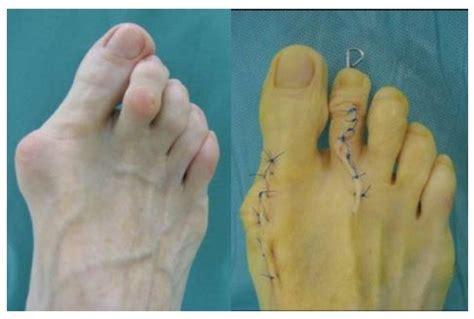 fußgymnastik nach hallux valgus op footwear modification following hallux valgus surgery the