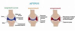 Лечение боли при артрите коленного сустава