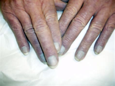 Cyanotic Nail Beds by Catalog Of Clinical Images