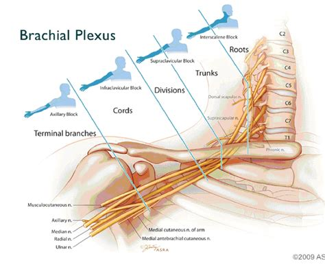 anterior and lateral division of the brachial plexus