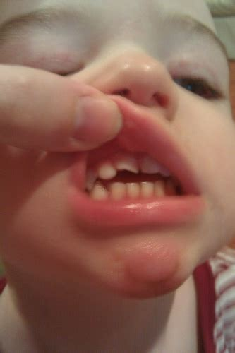 Abscess Tooth On Toddler