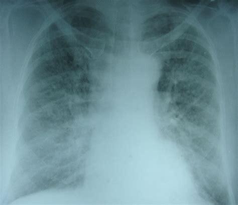 pulmonary edema  ray chest pa view
