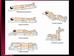 Image Result For Surgical Positions Trendelenburg Fowlers