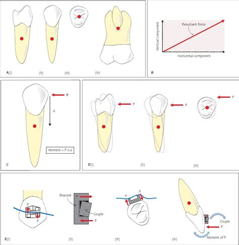 Tooth Movement Diagram by Tooth Movement Tooth Depression Tooth Intrusion Tooth