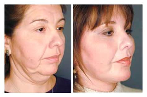 how do they do a neck lift