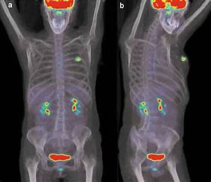 Pet  Ct Scan Of A Patient With Breast Cancer  A Trace