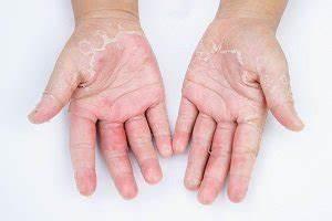 Trockene Hände Kokosöl : trockene aufgerissene h nde oroszsandor ~ Watch28wear.com Haus und Dekorationen