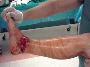 Open Talus Neck Fracture