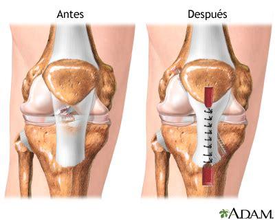 Lca koleno