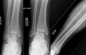 Roentgen Ray Reader  Maisonneuve Fracture Of The Fibula