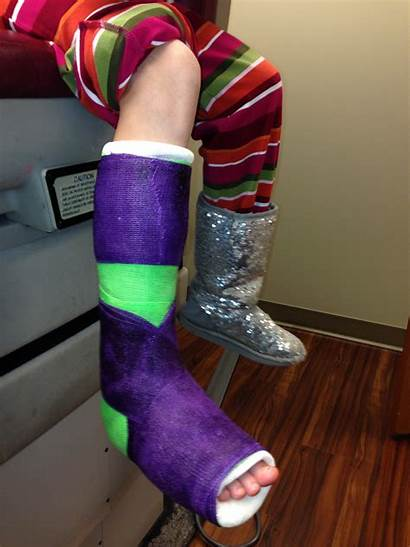 Navicular Accessory Syndrome Surgery Foot Cast Break