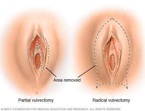 Operation to tighten vigina