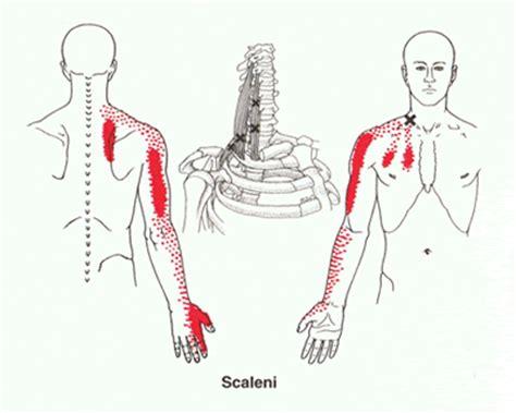 pijn borstbeen ontsteking
