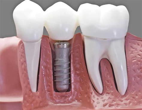 medicare cover dental implants medicarequick