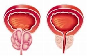 Народные эффективные средства для лечения простатита
