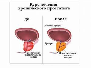 Лечение аденомы простаты в москве цены