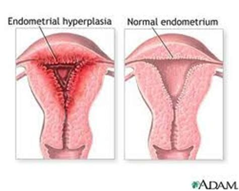 Shedding Of Uterine Lining After Menopause by Biomedical Research A Perspective Endometrial Hyperplasia